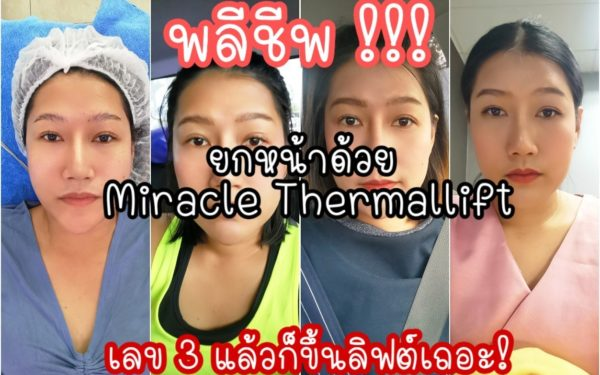 พลีชีพ! เล่าทุกเม็ด ยกกระชับผิวหน้า Miracle Thermallift ที่ Renovia Clinic