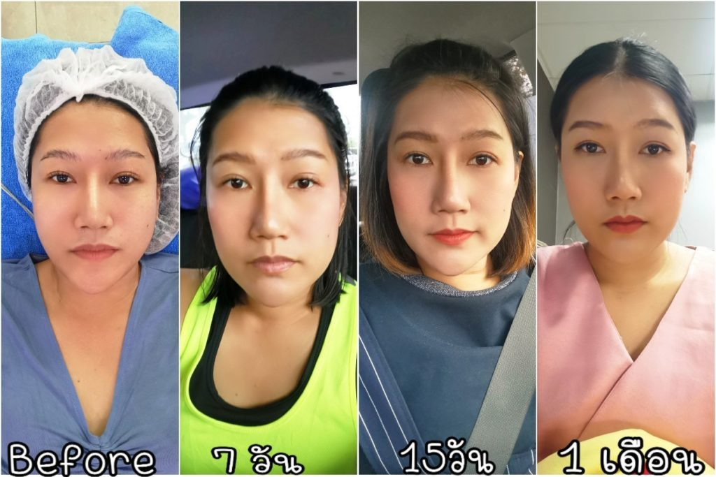 Before&After Miracle Thermallift